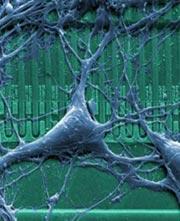 Rat Neuron On Chip